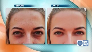 See Turn Back Time Spa & Wellness Clinic use intense pulse light to remove dark spots and reduce lines and wrinkles