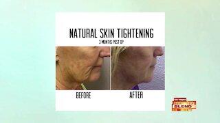 Tighten Your Skin In Minutes