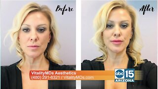 You can look amazing with injectable treatments offered at VitalityMDs Aesthetics