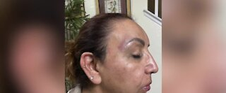 ONLY ON 13: Vegas bus driver allegedly attacked by passengers