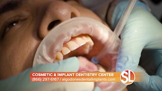 Dr. Valenzuela of Cosmetic & Implant Dentistry Center: Dental implants