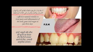 3 effective natural remedies to treat pain_inflammation of the teeth_gums_tongue_ulcers_just 3 days