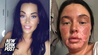 Botched TikTok egg hack leaves woman with 'poached' face