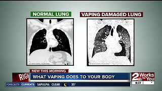 What vaping does to your body