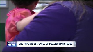 Cases of measles on the rise across the country, 90 confirmed last week