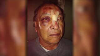Ice cream man recovering after being beaten and robbed