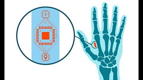 Klaus Schwab 2016 cipuri implantate in creier sau piele