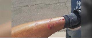Woman injured after falling through sidewalk covering