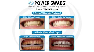 Give your smile a boost with Power Swabs