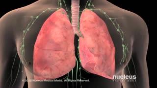 Avoiding Lung Cancer