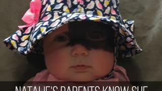 Baby With Birthmark Called A Superhero