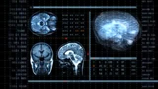 Psychopaths, Emotions & Brain Function