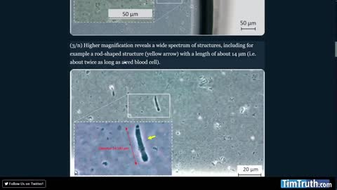"""Analysis Of Moderna Vaccine Vial Shows Mystery Rod-like Objects & """"Wide Spectrum of Structures"""""""
