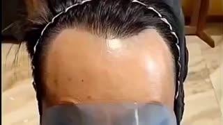 Bald man problems!