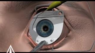 Eye laser surgery 3D