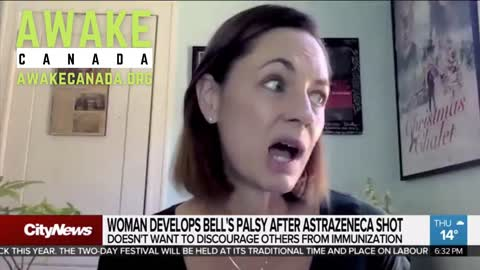 Bells Palsy Vaccine Victim