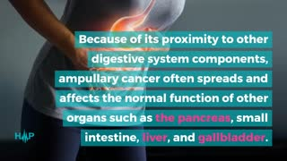 What Are The Symptoms Of Ampullary Cancer?