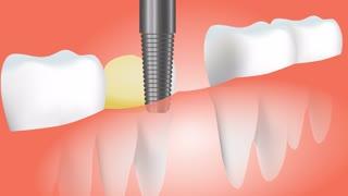 Tooth bridge medical dental care