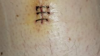 Staples After Surgery