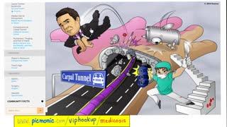 Tinel Test | Carpal Tunnel Syndrome | Median Nerve