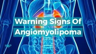Warning Signs Of Angiomyolipoma