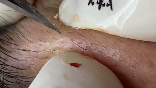 removing blackheads, relaxation and satisfaction