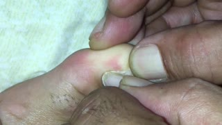 Woman Removes Toenail After it Hollowed Out from Exercise