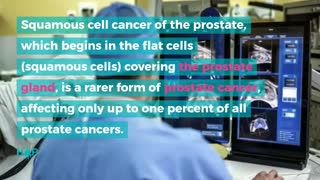 Guide To The Types Of Prostate Cancer