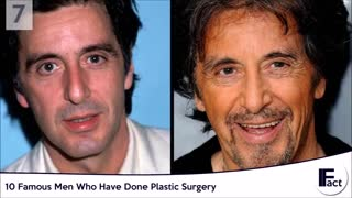 10 Famous Men Who Have Done Plastic Surgery