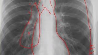 Left Pneumothorax CXR