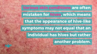 13 Serious Problems That Hives Could Indicate