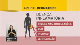 Treatment for rheumatoid arthritis will be available free of charge by SUS