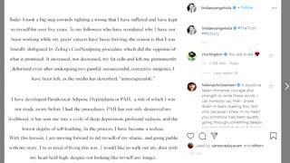 Ex-supermodel files $50mln lawsuit over disfigurement