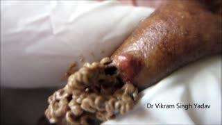 Dr. Vikram003